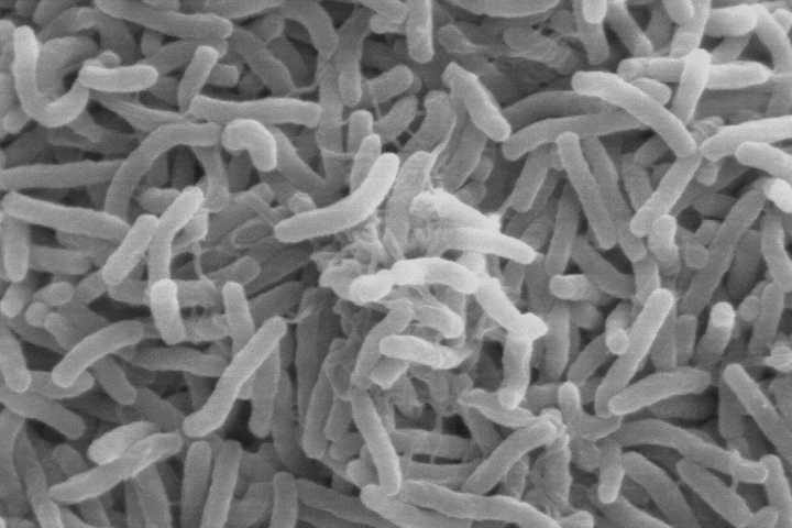 Vibrio cholerae—the bacteria that cause cholera—can live in the guts of microscopic aquatic animals and can lurk in the ocean for months to years. When the right environmental conditions arise, the bacteria can infiltrate water supplies and spread disease to people. (Scanning electron microscope image courtesy of Kirnet al., Dartmouth Medical School, viaWikimedia Commons.)