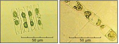 Phytoplankton microscope