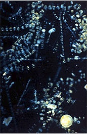 Diatoms silicate covering